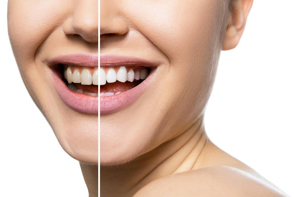 Las carillas dentales, una solución acertada