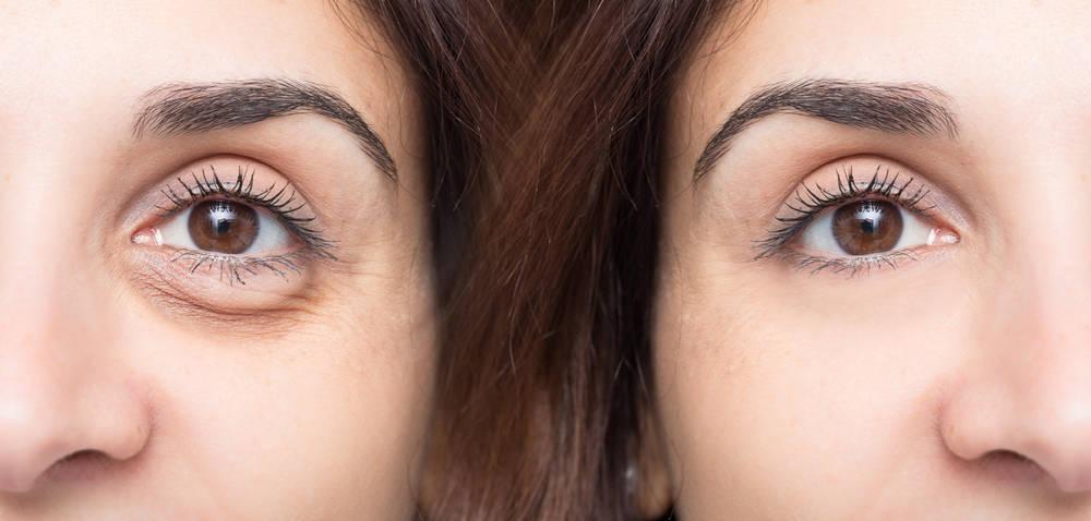Blefaroplastia, la técnica para lucir una joven mirada
