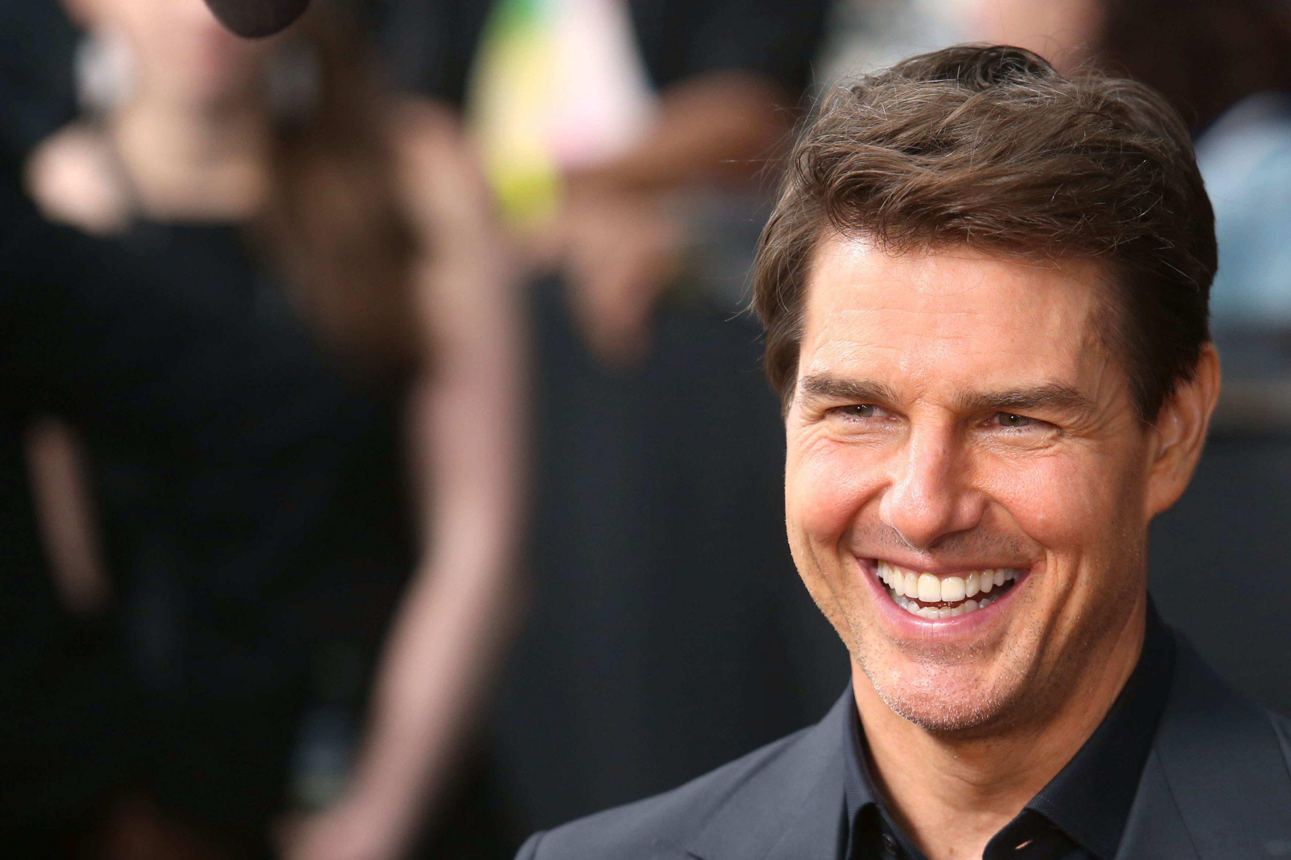 Por qué las celebrities lucen sonrisas de cine