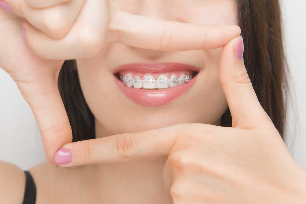 Curiosidades y mitos sobre la ortodoncia que no sabías